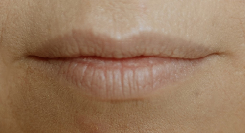 NAAKTE lippen. Bleek en droog.
