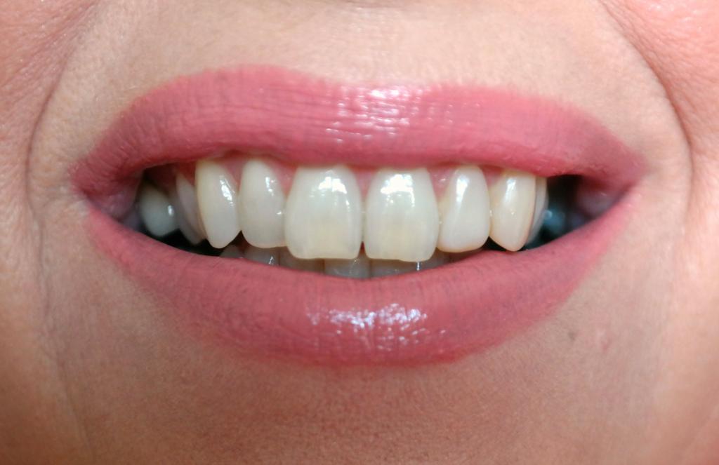 tandpasta NA