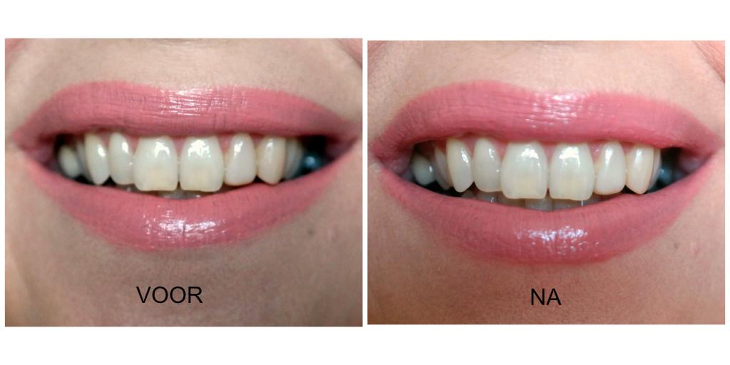 voor en na tandpasta